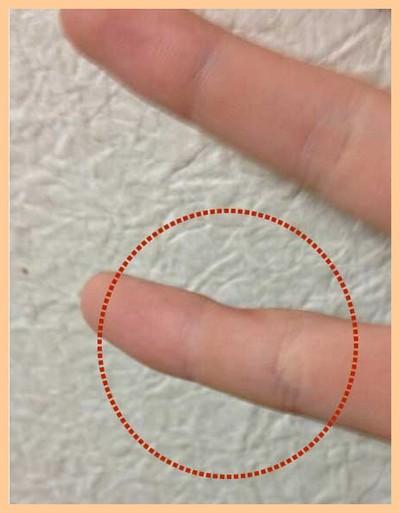 スマホ指の小指